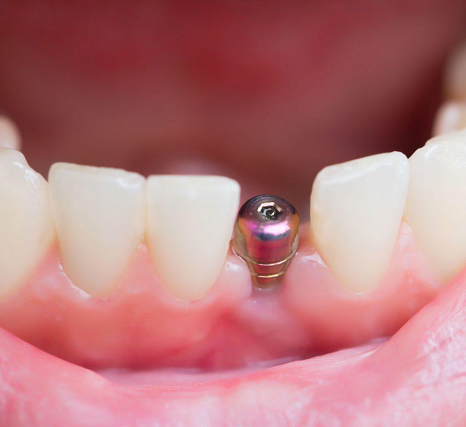 pino de titânio para implante dentário