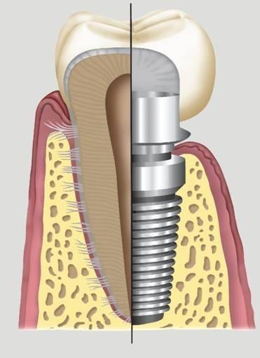preço de implante dentário total
