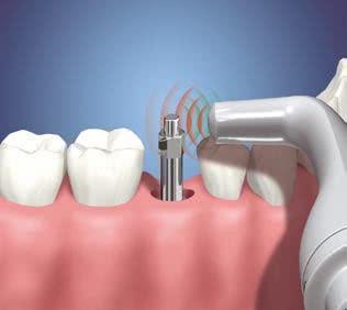 quanto custa cada implante dentário