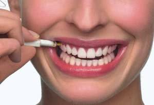 quanto custa fazer um implante dentário