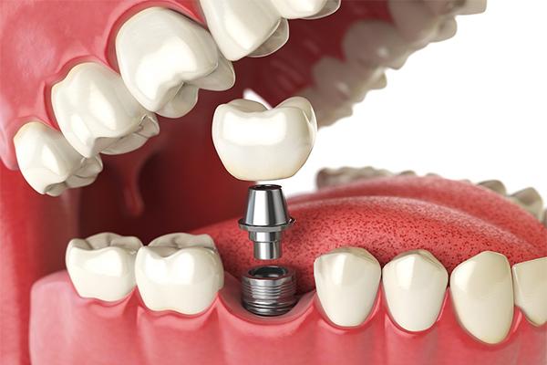 quanto custa implante dentário total