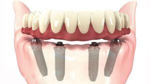 quanto custa o implante dentário