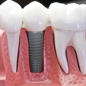 quanto custa um implante dental
