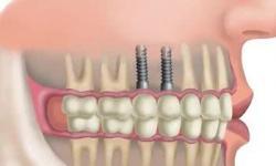 custo de um implante dentário