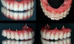 implante dentário completo preço