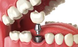 implantes dentários a preço de custo