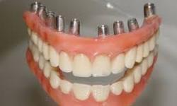preço implante dentário completo