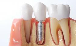qual o valor de um implante dentário