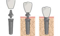quanto custa em media um implante dentário