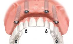 quanto custa um implante de dente