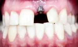 quanto custa um implante de um dente
