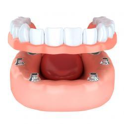 implante dentário carga imediata