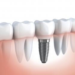preço de um implante dentário de um dente