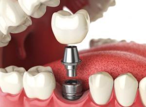 clinica especializada em implante dentário