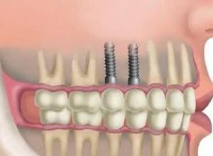 custo do implante dentário