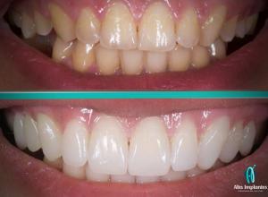 implante de um dente preço