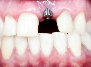 implante dentário dente da frente