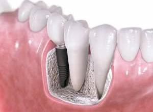 implante dentário valor médio