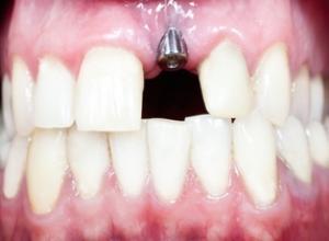 preço de implante dentário 1 dente