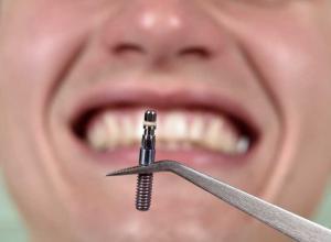 preço de implante dentário
