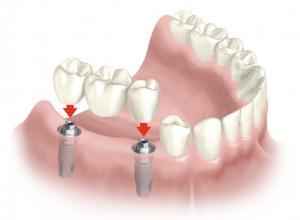 preço implante dentário