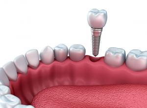 preço médio implante dentário