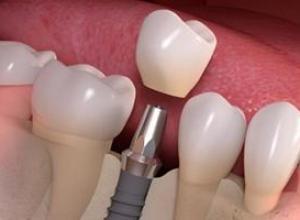 prótese implante dentário