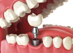 qual valor de implante dentário