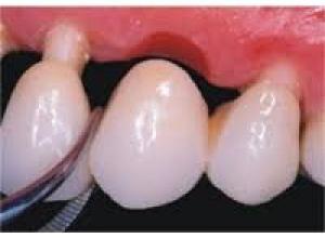 qual valor de um implante dentário