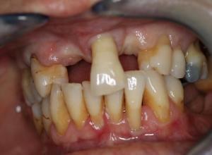 quanto custa implante dentário completo