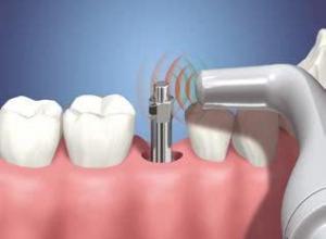 quanto custa implante dentário de um dente