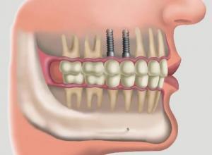 quanto custa para fazer um implante dentário