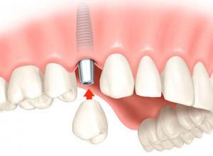 quanto custa um dente de implante