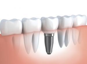 quanto é um implante de dente