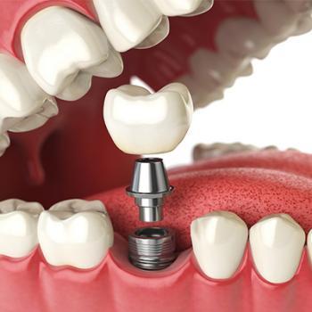 implante de dente quanto custa